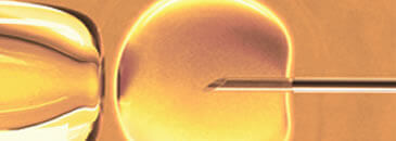 in vitro fertilization - ivf