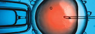 injeção intracitoplasmática de gameta masculino – icsi